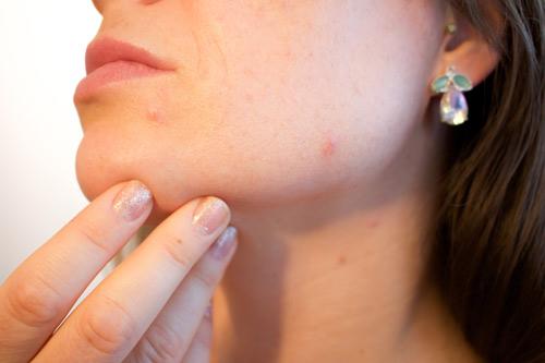 USE.acne-1606765